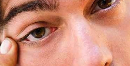 Mí mắt dưới bên trái bị giật liên tục có điềm báo gì?